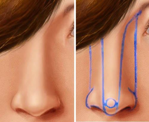 Ринопластика носа (реабилитационный период)
