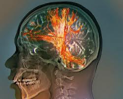 Понятие опухоли головного мозга
