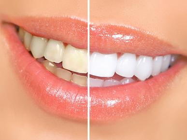 Как отбелить зубные протезы