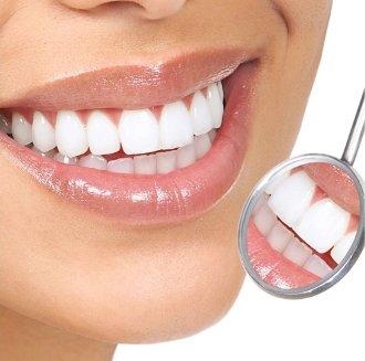 Зубные имплантаты: плюсы и минусы