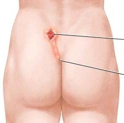 Киста копчика — диагностика, симптомы, лечение
