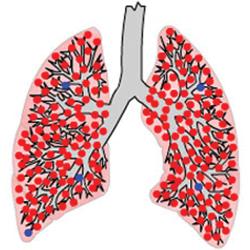 Как победить туберкулез