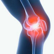 Чем лечить коленные суставы