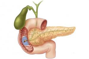 Дуоденит - симптомы и лечение