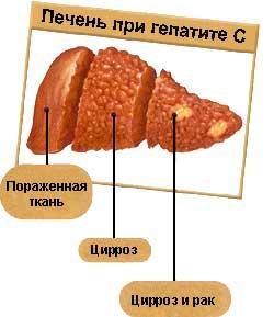 Как вылечить гепатит С