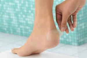 Как избавиться от натоптышей на ногах