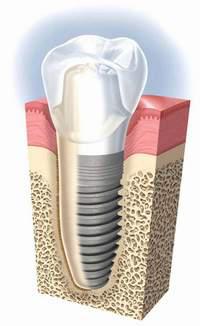 Советы при имплантации зубов