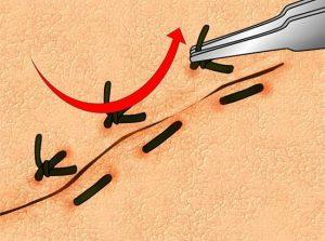 Как правильно снять швы